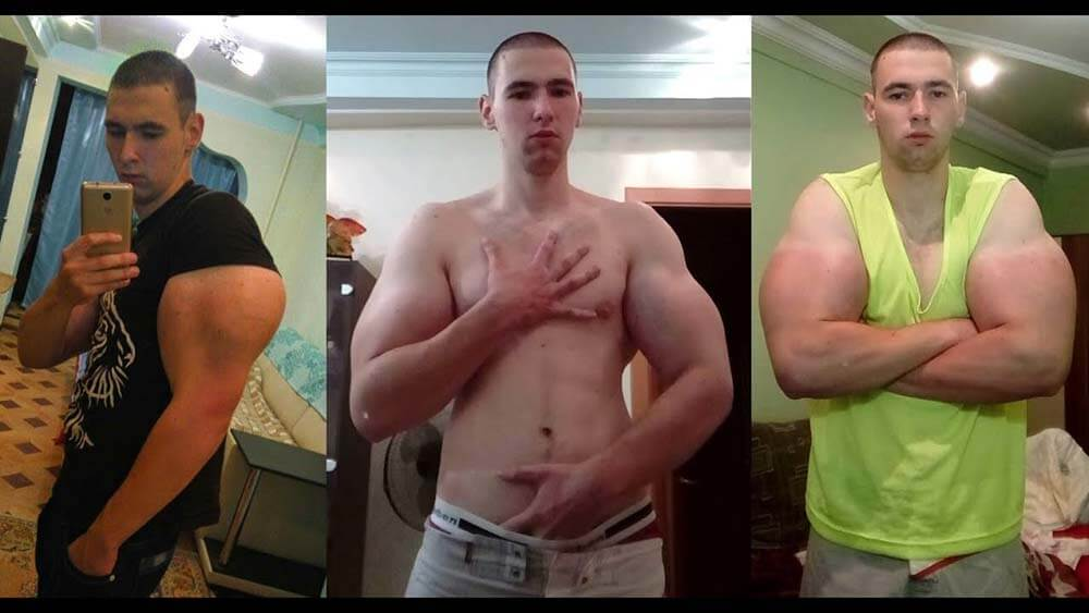 heres the story behind that russian synthol freak thats
