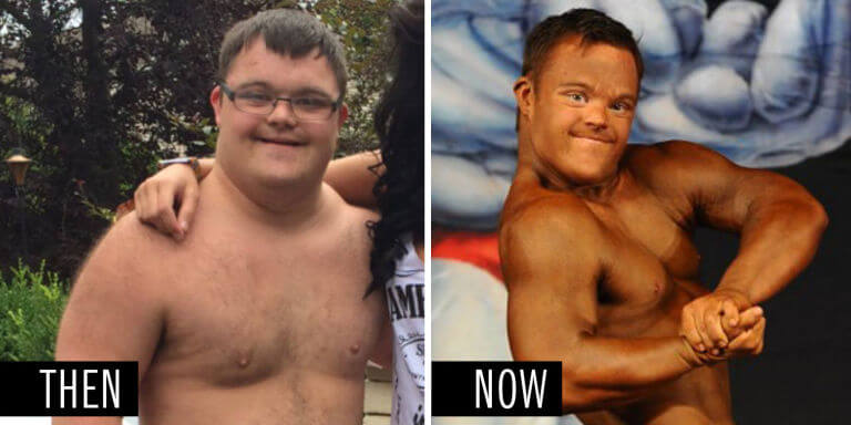 Inspiring Bodybuilder With Down Syndrome Cuts 60 Lbs To Compete On Stage