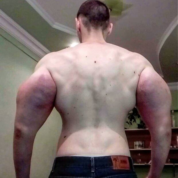 That Delusional Russian Synthol Kid Might Really Need His Arms Amputated