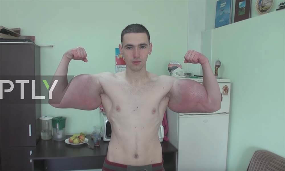 Delusional Russian Synthol Kid's Arms Operated on in Emergency Surgery