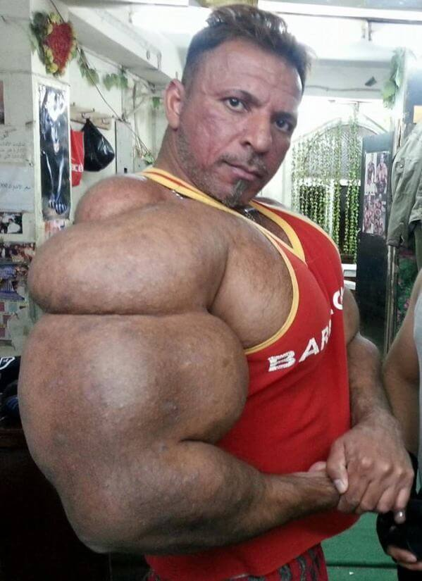 biggest muscles ever - 599×825
